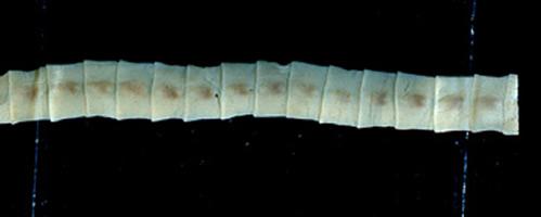 a diftillobothriasis hogyan távolítják el a parazitákat a májból