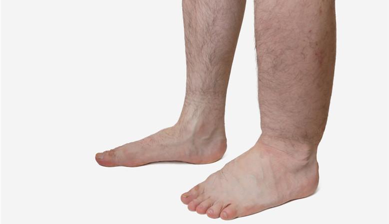 a helmintak kezelese a testben bélféreg kakiban