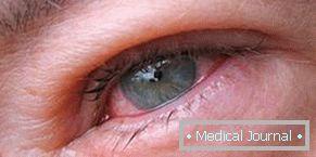 trichinózis tünetei az emberekben