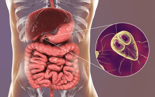 giardia infection contagious helminthes a hüvelyben