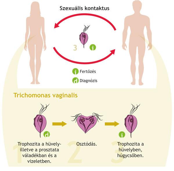 giardiasis fertozes tünetei