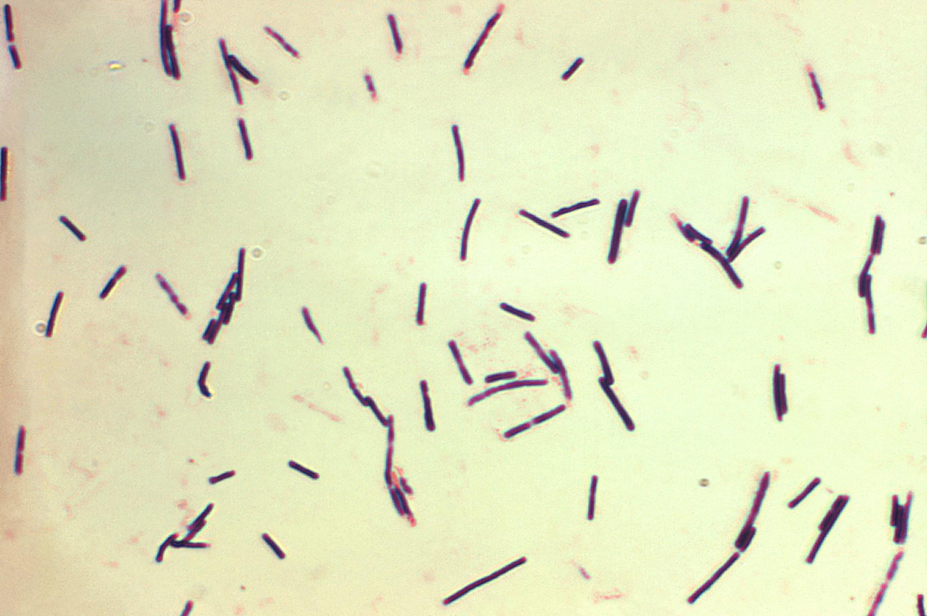 kerekféreg- fertőzés útjai hatékony készítmény a férgek széles skálájához
