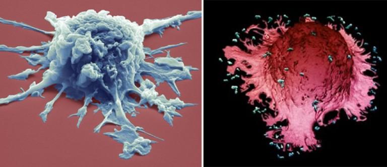 a toxoplazmózis inkubációs periódusa: méregtelenítés kiegészítők nutrishop