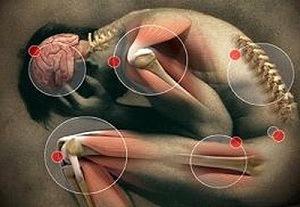 Férgek, kukacok az élő testben - A helminthiasis és a kezelés tünetei