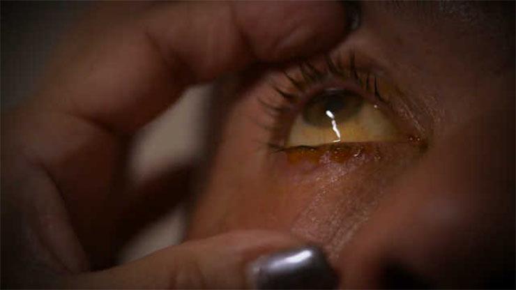bőr paraziták tünetek képek pinworm kezelés gua