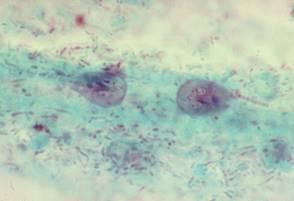 enterobiasis, hogyan lehet kezelni gyógyszeres áttekintés nélkül gyógynövény féreg gyógyszerek