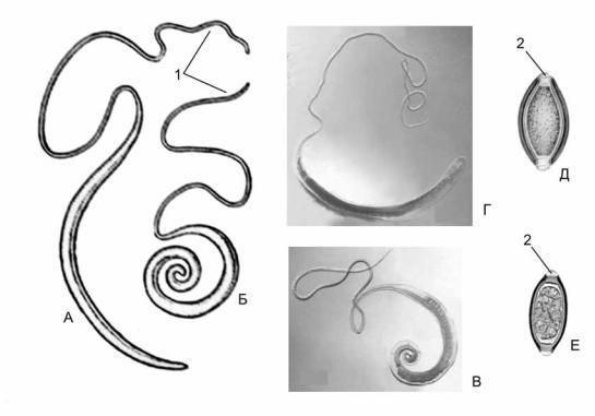 trichocephalosis hogyan néz ki szalagféreg tippeket