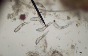 bél paraziták tojások rossz lehelet a torok kezeléséből