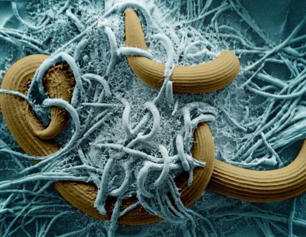 A kerekférgek a vékonybélben élnek. Рубрика: A giardiasis patogenezise.