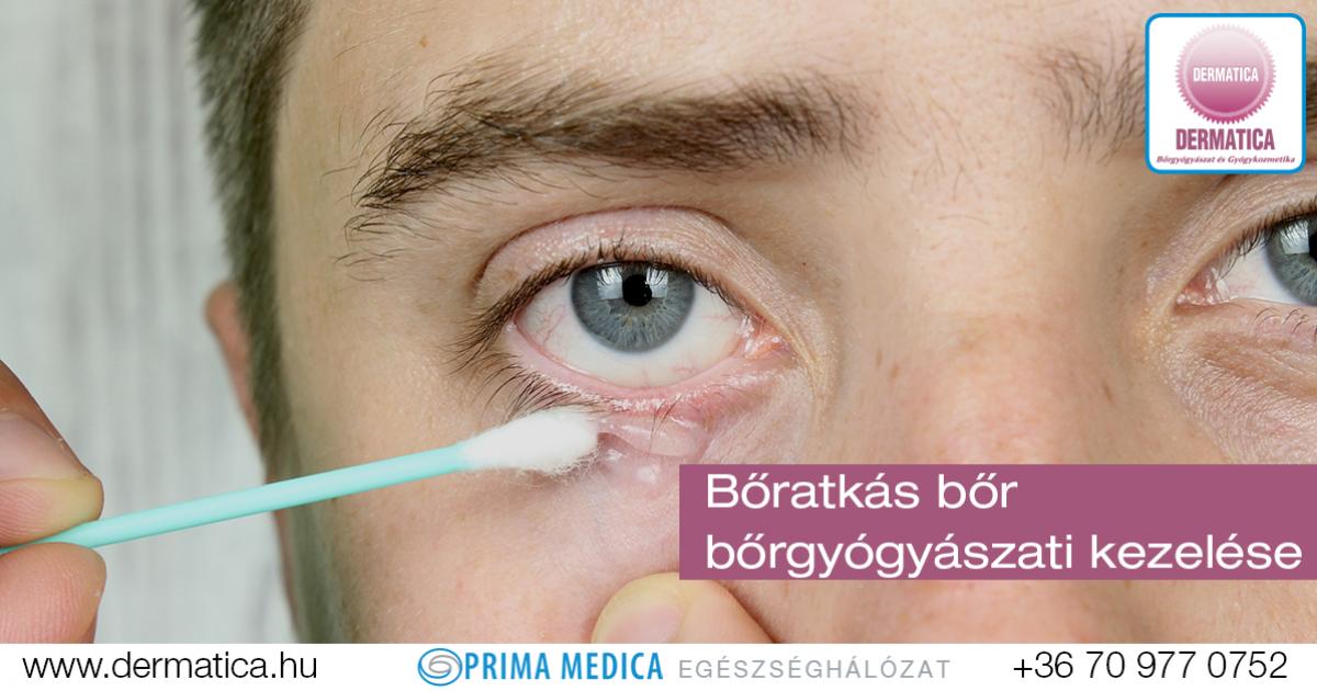 gyógyítja a szem parazitáit parazita 2. évad