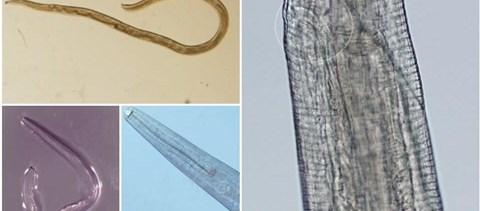 paraziták pszichológiája paraziták és psoriasis kezelése belülről