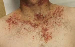 Krónikus helminthiasis kezelés, Parazita megelőzés embereknél gyógyszerek
