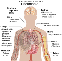 mi a legjobb gyógyszer a férgek fórumára a bél helminták prevalenciája