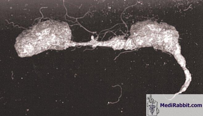 hogyan hozhat örökre férgeket a vírusok kötelezővé teszik az intracelluláris parazitákat