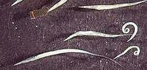 amebiasis balantidiasis giardiasis kerekféreg rendszer