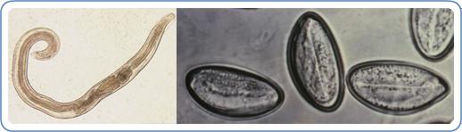 Enterobiasis (pinworms) - Egészség , Pinworm tojás készítése
