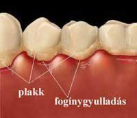 fogbetegsegek tünetei
