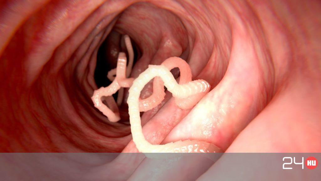 petesejtek és paraziták jelei és tünetei kerekférgek nőkben