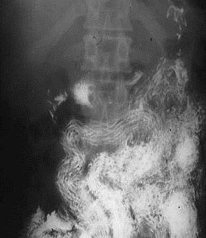 Trichocephalosis geohelminthiasis