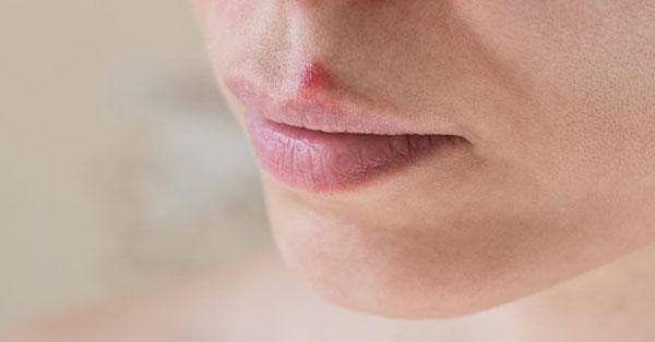 fájdalom a száj bal oldali szagában gyógyszerek a gyermekek parazitáira