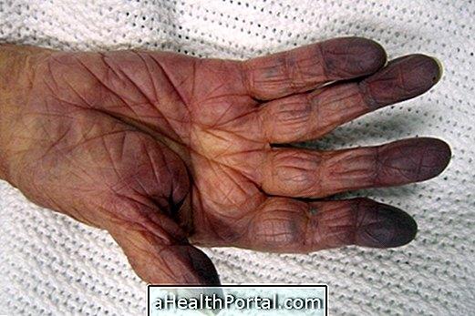 hasnyálmirigy rossz lehelet parazitaellenes gyógyszerek a demodikózishoz