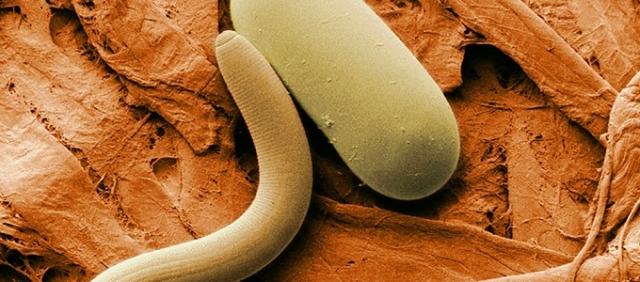 férgek gyógyszereinek mellékhatásai az emberi körgyűrű mérete