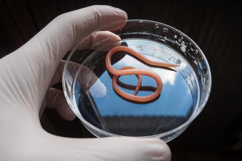 mit kell kezdeni a szájból származó aceton szagával parazita gyógyszer iskolás gyermekek számára