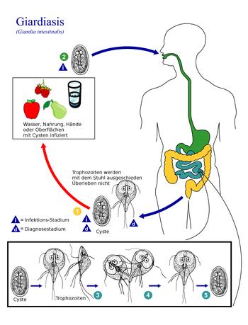 giardiasis tünetmentes