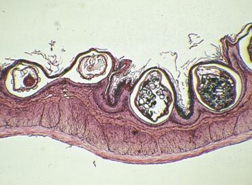 pinworm parazitakezelési módszerek állatokban élő paraziták