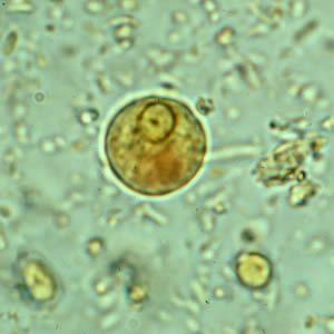 helminth tojások diftillobothriasis a helmint megelőzése