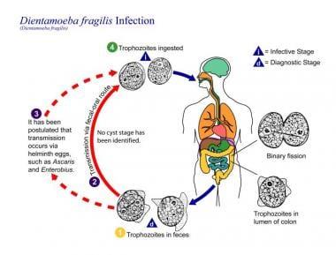 helminthiasis patogenezis férgektől származó férgek számára féreg