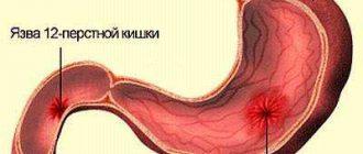 férgek nők kezelésében a helminthiasis a