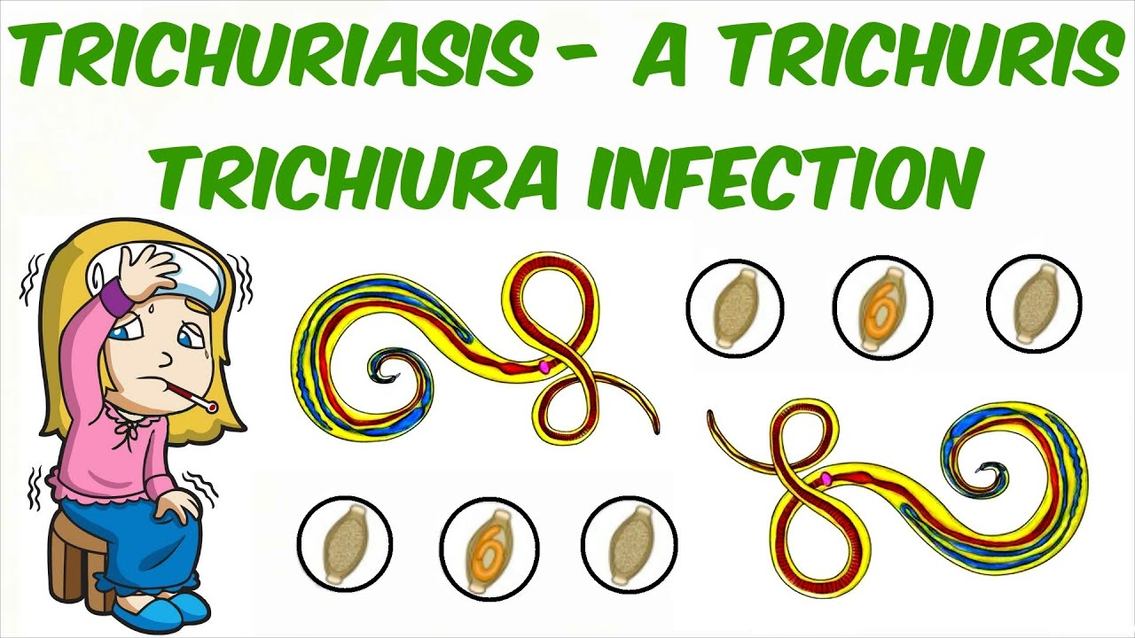 Pinworm férgek - hogyan lehet kezelni őket?, Pinworms hogyan kell kezelni
