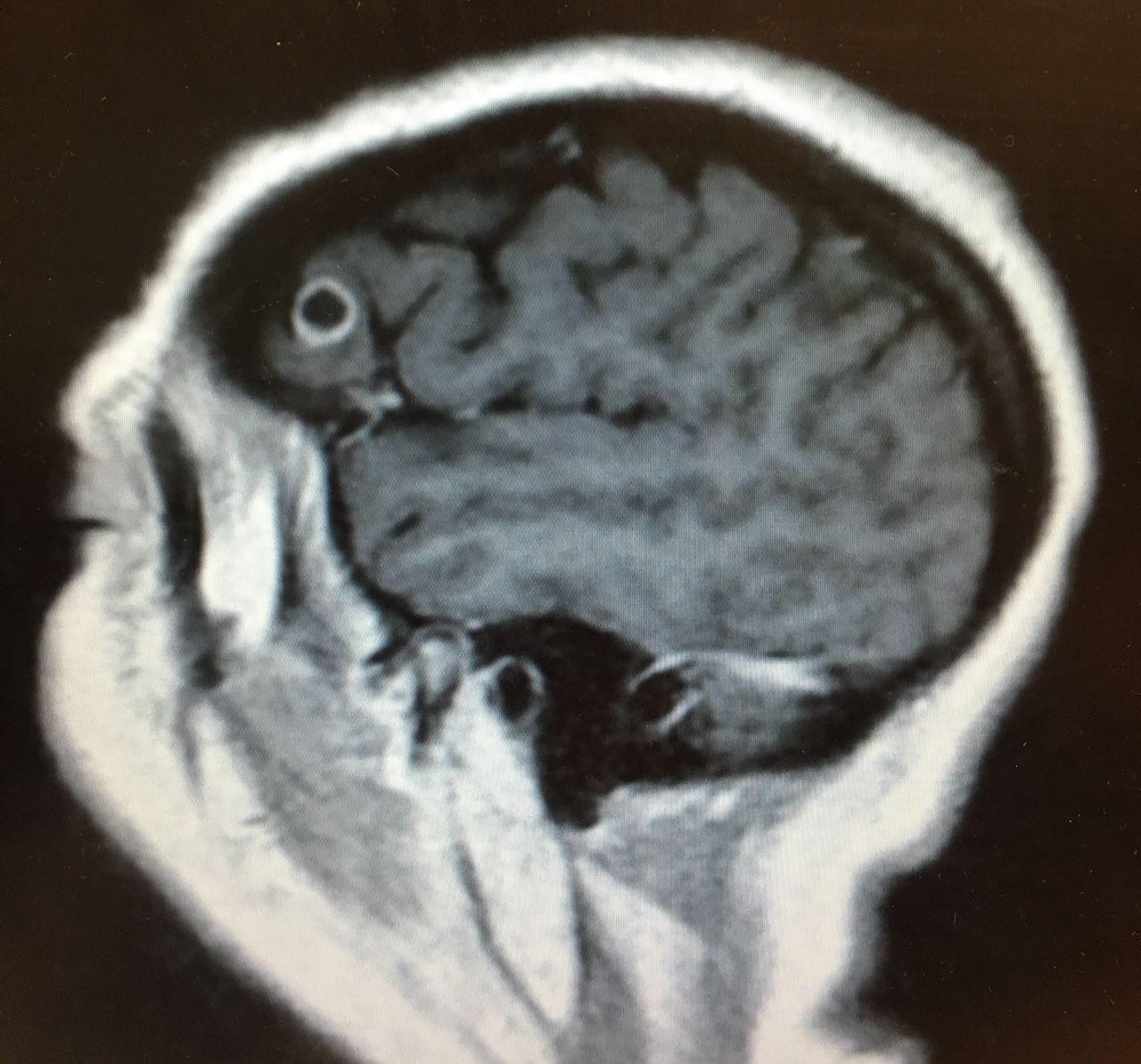 parazita az agyban