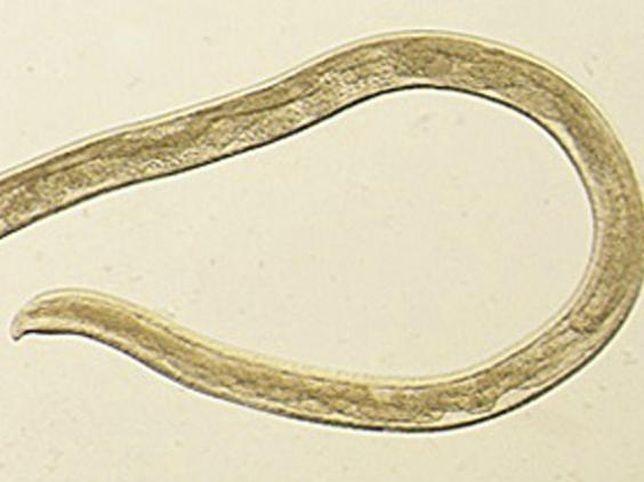 rossz leheletű parazitaellenes szer férgek, hogyan lehet gyorsan kilépni
