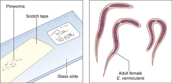 Tojások enterobiosis. A pinworm tünetei: