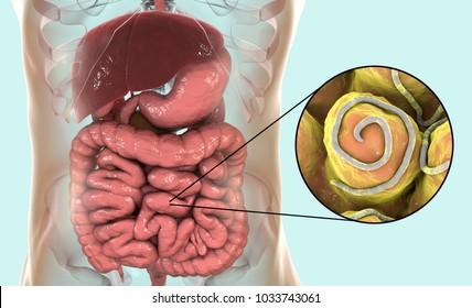 pinworm jelek hogyan lehet acetonnal észlelni a rossz leheletet