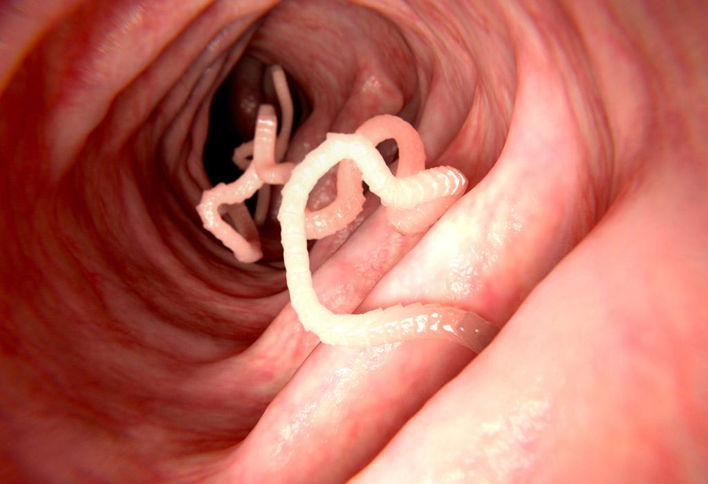 amoeba paraziták az emberi gyomorban