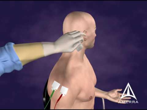 Dectomax injekció