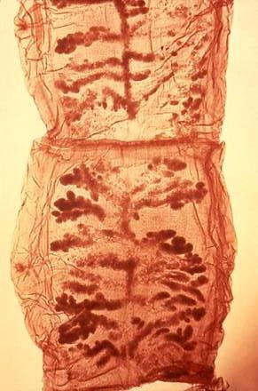 teniosis teniarinhoz parazita tisztító fórum