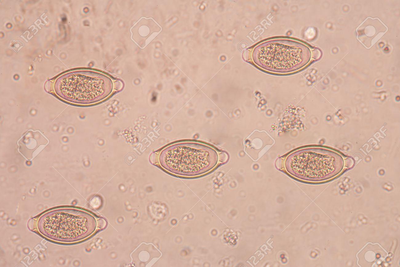 trichocephalosis geohelminth parazita kezelése féreggel