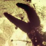parazita rákfélék kezelése
