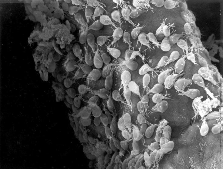 parazit lamblia