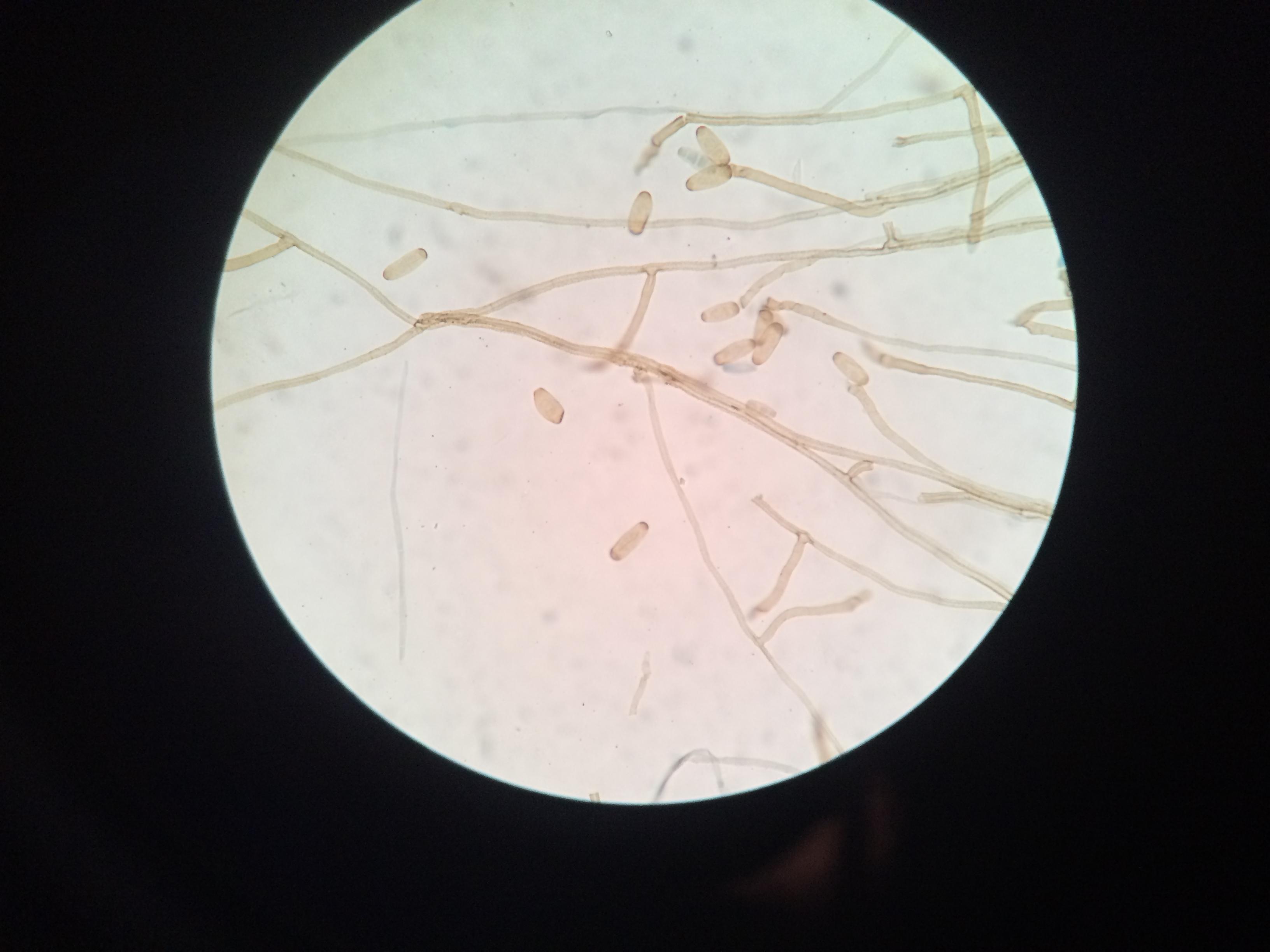 helminthosporium nodulosum hogyan történik a prosztata kenet