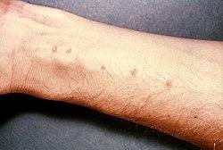 vízben terjedő paraziták tünetei