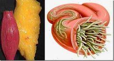 nyelv étkezési paraziták