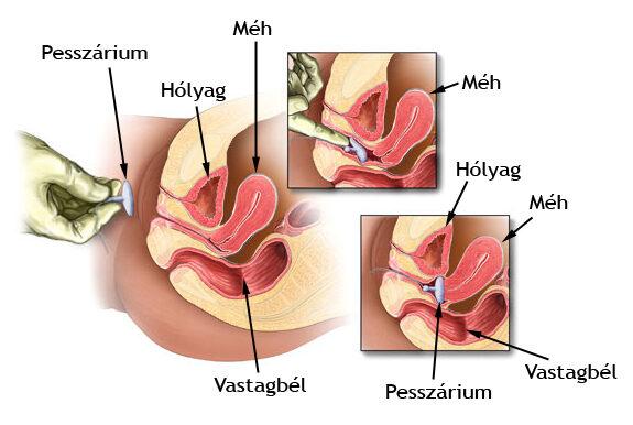 helminták kezelése nemosollal gyógyszer emberi belső parazitákhoz
