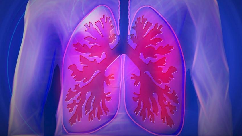 tüdő betegség