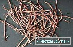 tabletták az emberek pinworms ellen