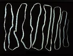paraziták az emberi vékonybélben, tünetek és kezelés